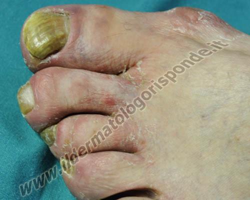 Che esso è possibile ammorbidirà unghie a un fungo di unghie