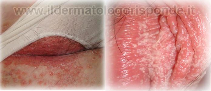 infezioni da candida albicans balanopostite e vulvovaginite
